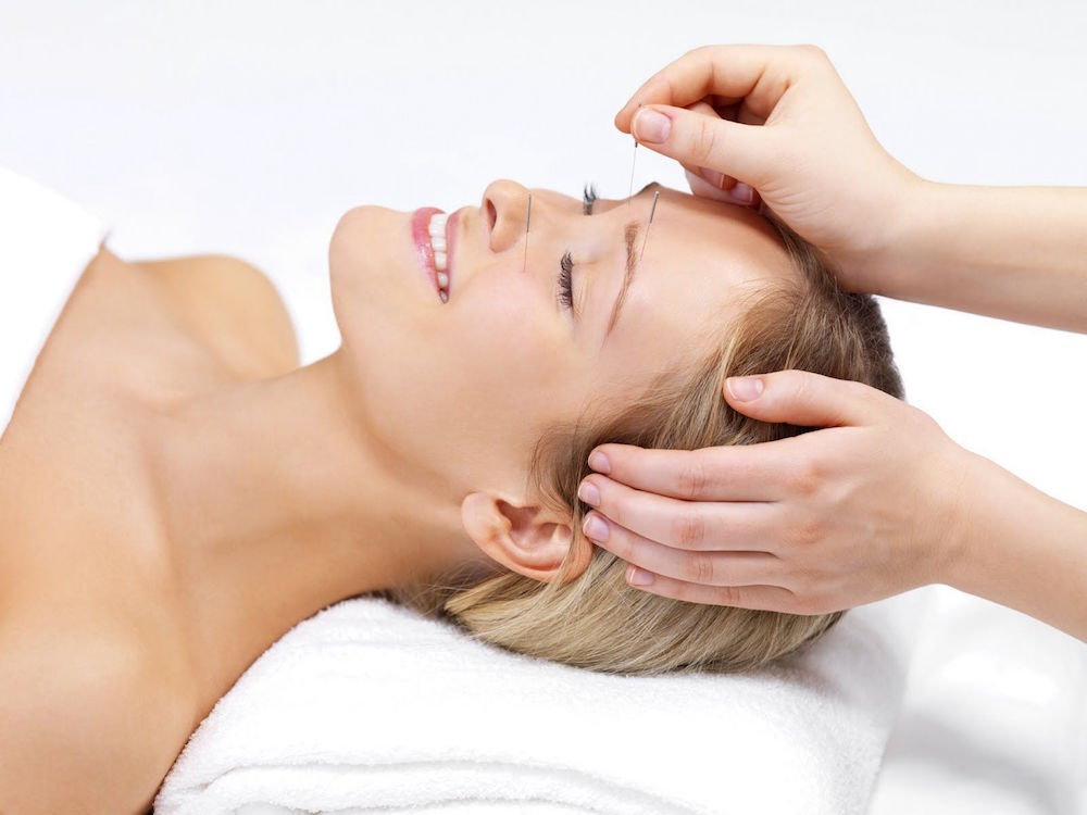 What is Cosmetic Acupuncture? By Dr Irene Prantalos